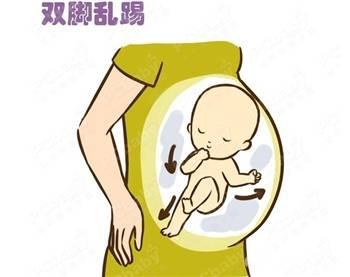 临产前宝宝脐带绕颈胎死腹中,准妈你注意胎动了吗?