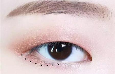单眼皮是显性基因还是隐性基因 单眼皮容易遗传吗?