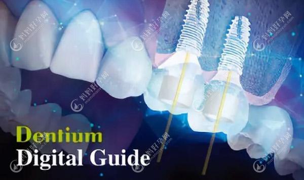 韩国登腾种植牙为什么便宜,听说Dentium的价格3900元一颗