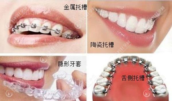 详解牙齿矫正器的种类及价格,发现这几种品牌的比较好用